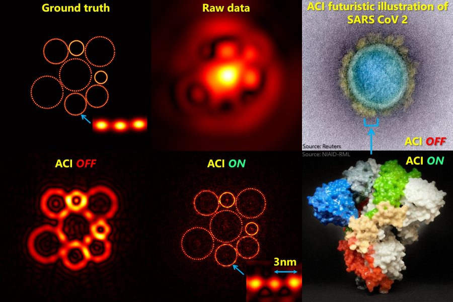 Set of ACI images.