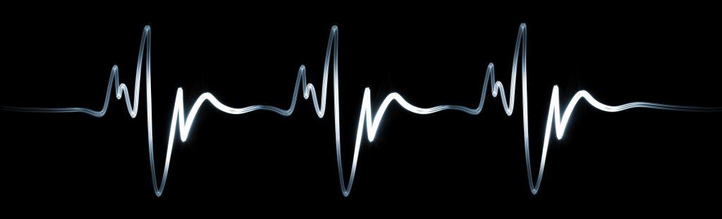 Electrocardiogram research Ye Sarah Sun